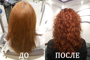 Внешний вид  до и после процедуры