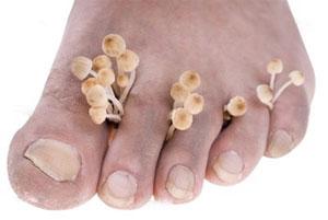 Средства против ногтевого грибка