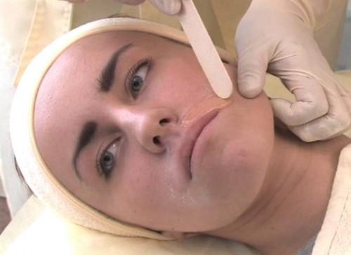 Эпиляция лица воском