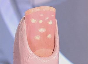 Пятна на ногтевой пластине