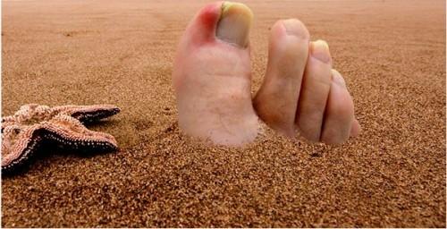 ingrown_toenail