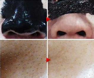 эффективные маски от черных точек фото