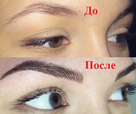 до и после работа 2