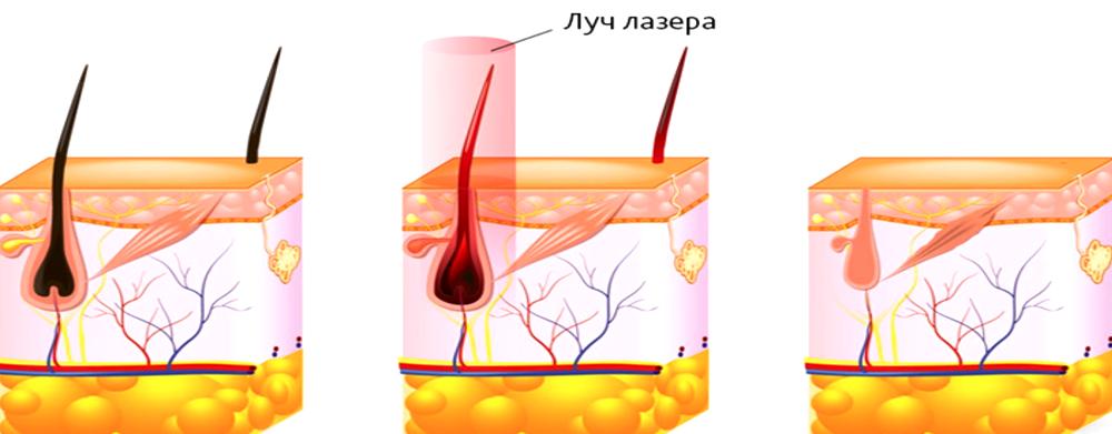 Что представляет собой лазерная эпиляция