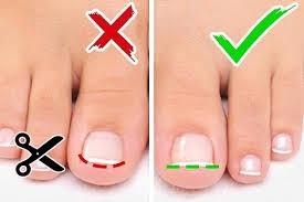 как правильно стричь ногти на ногах