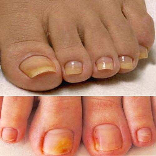 пожелтели ногти на ногах